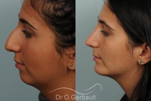 Rhinoplastie Dr Gerbault